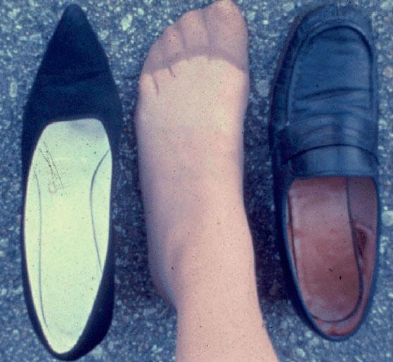 тесная и просторная обувь