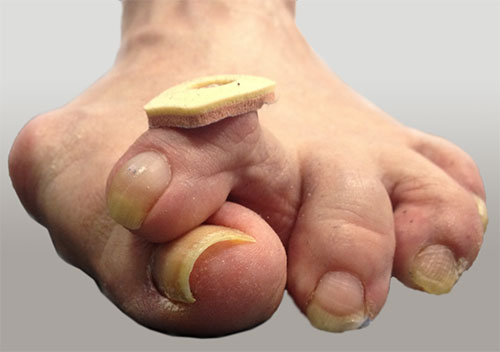 тяжелая вальгусная деформация 1-го пальца