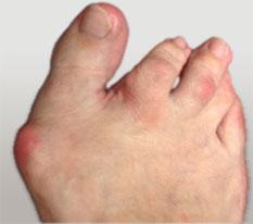 наружное отклонение малых пальцев стопы