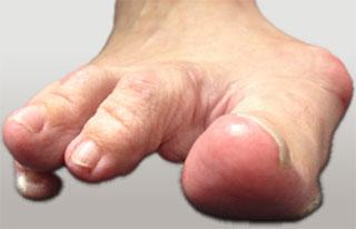 отклонение малого пальца стопы