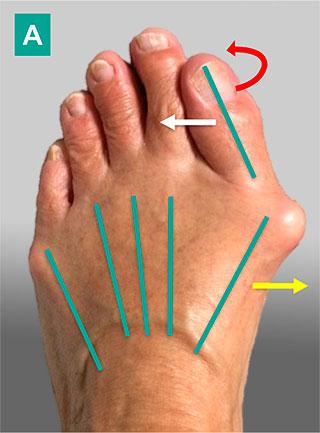 вальгусная деформация 1-го пальца стопы