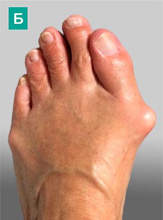 деформация 1-го пальца стопы