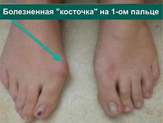 вид косточек стопы