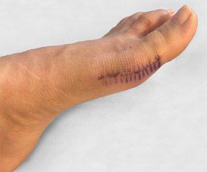 вид стопы после операции