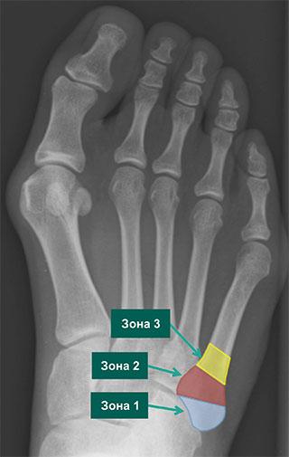 зоны локализации переломов 5 плюсневой кости