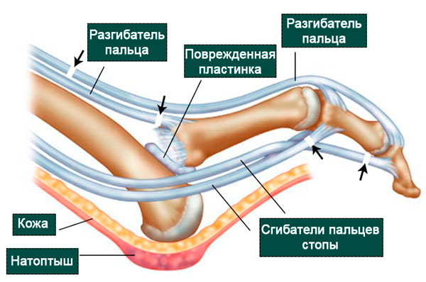 вывих пальца анатомия