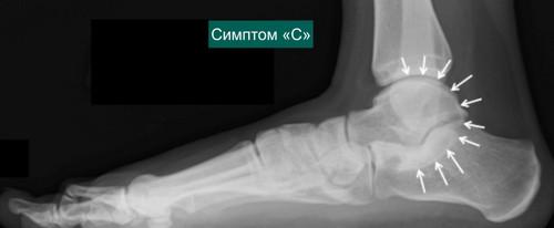 Рентгенограмма стопы и голеностопного сустава в боковой проекции