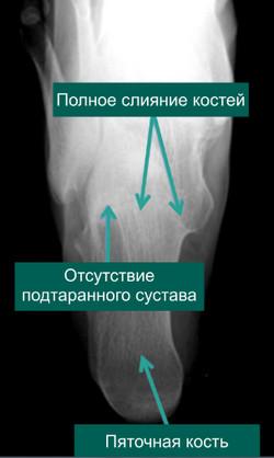Рентгенография стопы с полной таранно-пяточной коалицией