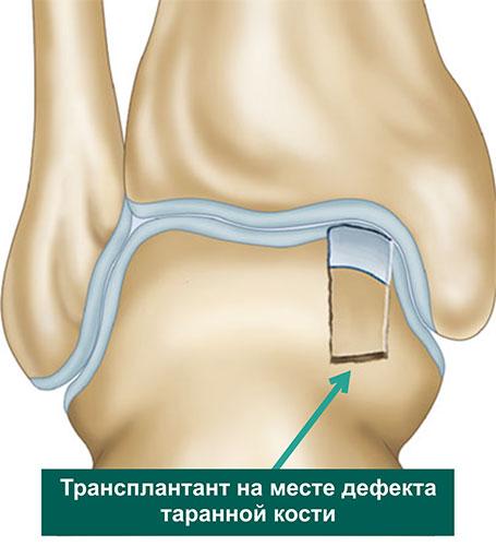 Костно-хрящевой трансплантат