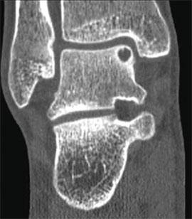 остеохондральные дефекты таранной кости