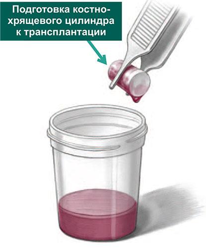Подготовка костно-хрящевого цилиндра