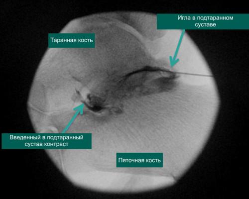 Рентгенограмма, отражающая правильное расположение иглы в подтаранном суставе