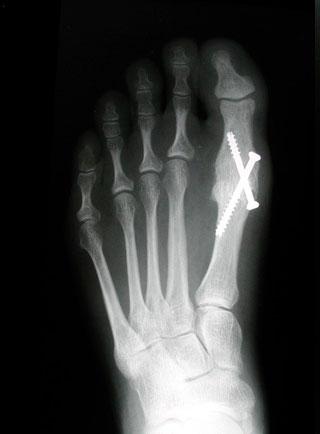 восстановленая анатомия стопы