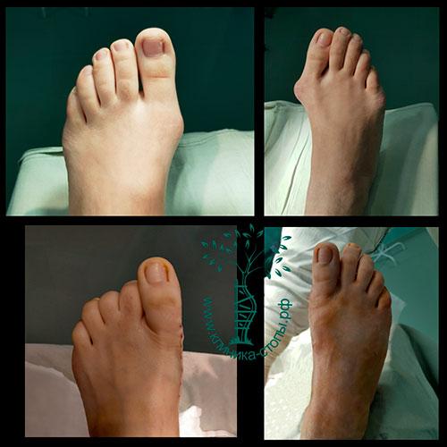 лечение вальгусной деформации большого пальца стопы