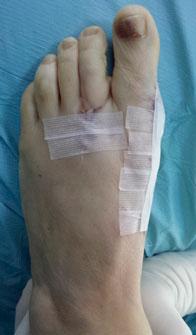 стопа после операции