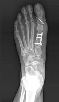 остеотомия двух костей