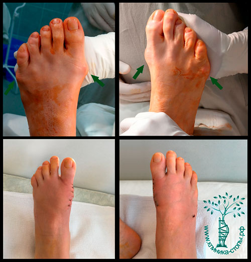 Операция при вальгусной деформации стопы