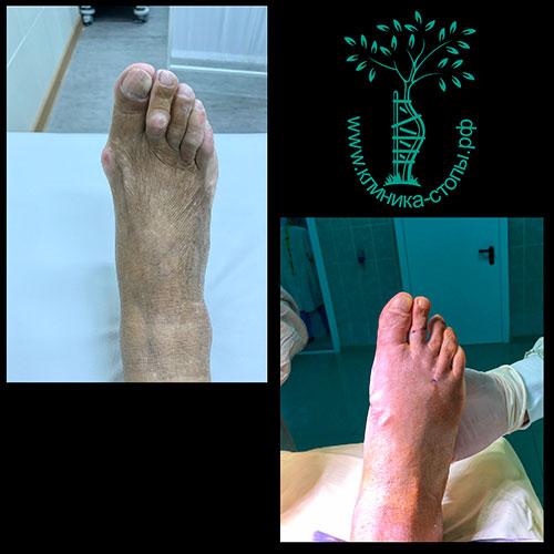 лечение косточек на стопе
