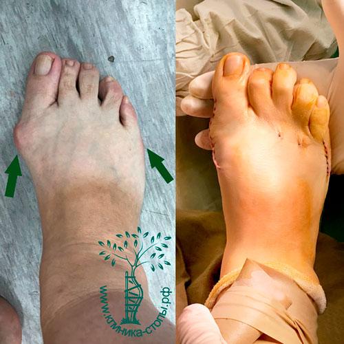 Лечение вальгусной деформации большого пальца