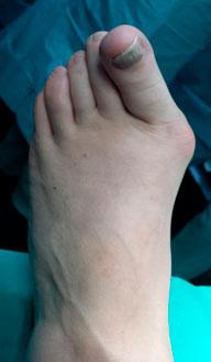 Прогрессирование вальгусной деформации 1 пальца