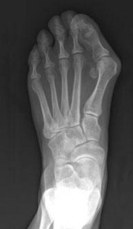 Рентгенограмма стопы