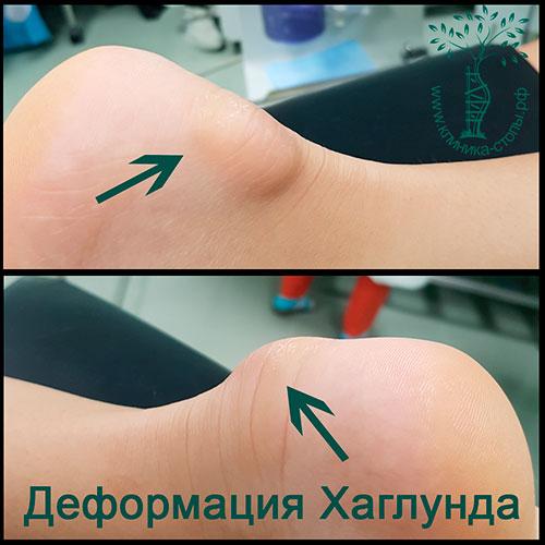Болезненные шишки на пятке