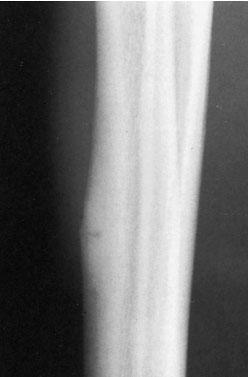 перелом передней кортикальной пластинки