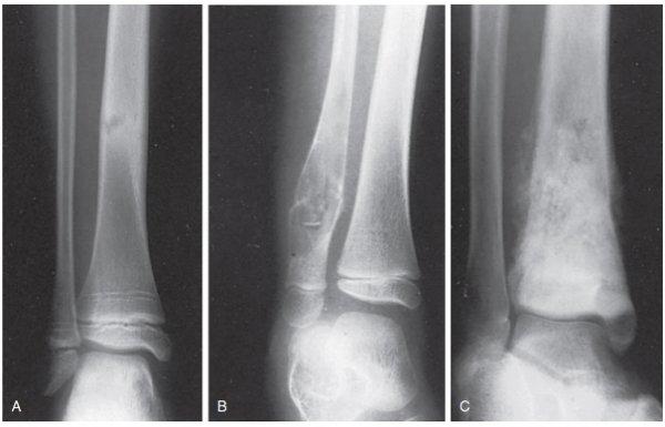 Рентгенография пациента с компартмент-синдромом