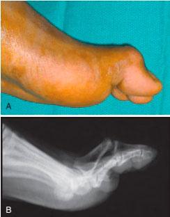 Контрактура суставов и тыльный подвывих большого пальца