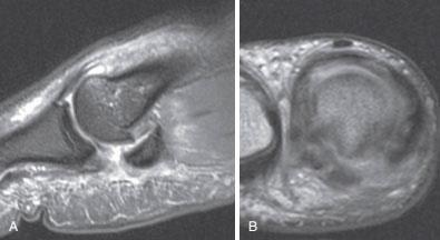 МРТ повреждения связок первого пальца
