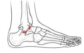 растяжение связок ноги
