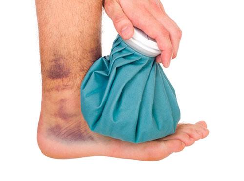 симптомы при повреждении связок голеностопа