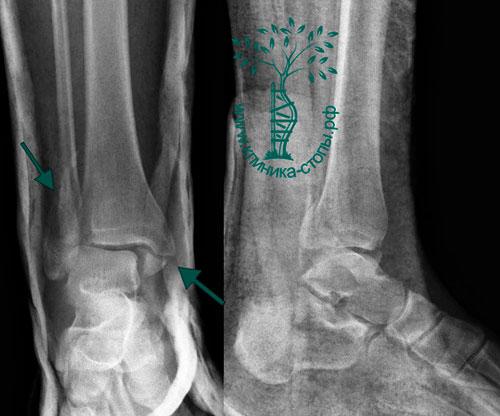 перелом перегородки костей
