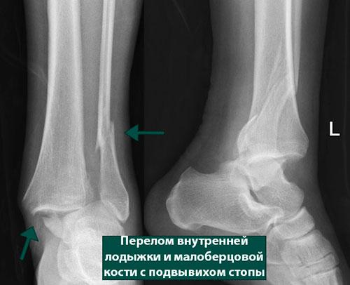 Переломы лодыжек в сочетании с переломом переднего края