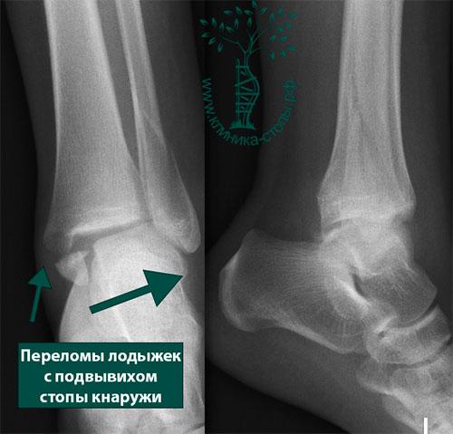 Переломы лодыжек без смещения стопы