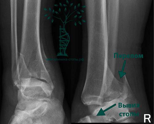 Переломы и вывихи лодыжек