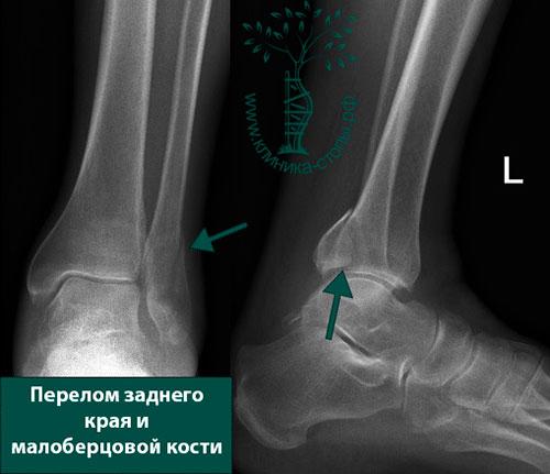 перелом заднего края большой берцовой кости