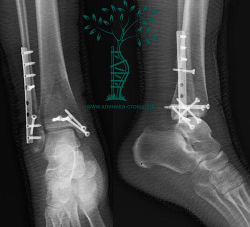 Рентгенография стопы с винтом, вид сперед