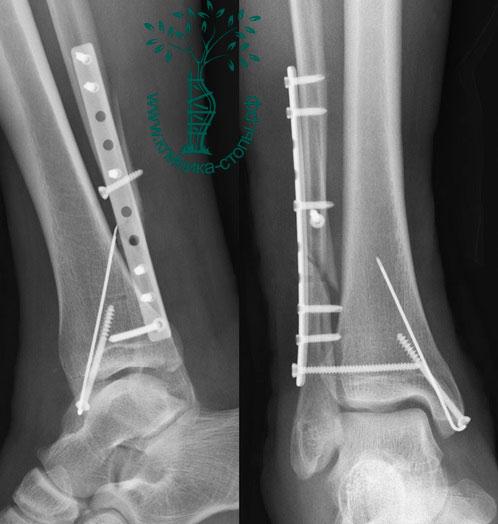 титановая пластина в ноге