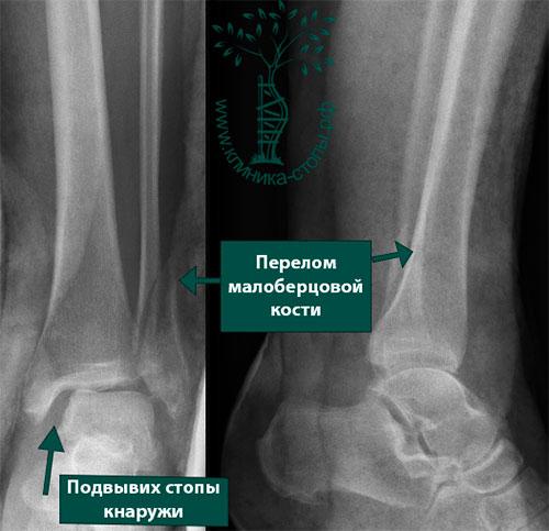 Переломы малой берцовой кости