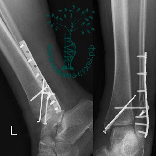 Лечение эпифизарного перелома