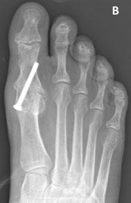 Рентгенограммы после артродеза 1-го ПФС