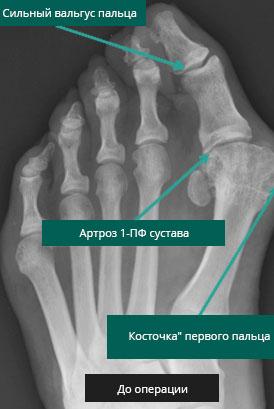 артродез 1-го ПФС