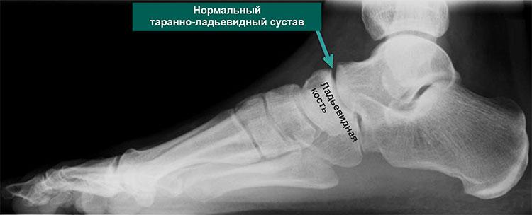 Рентгенограмма нормальной стопы