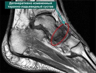 томограмма нормального таранно-ладьевидного сустава
