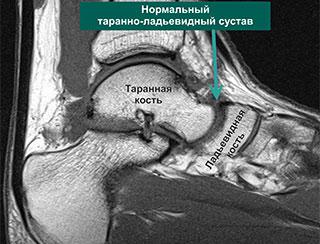 МР-томограмма дегенеративно измененного сустава