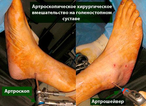 артрсокопия голеностопа