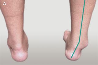 деформация правого голеностопного сустава