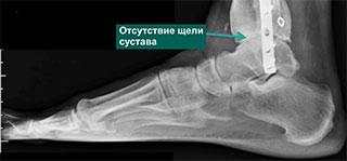 пациент с посттравматическим остеоартрозом