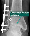 рентген пациента с посттравматическим остеоартрозом